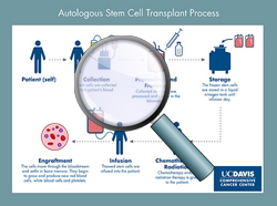Autologous stem cell transplant process - CLICK HERE TO ENLARGE ILLUSTRATION