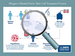 Allogeneic related stem cell transplant process - CLICK HERE TO ENLARGE ILLUSTRATION