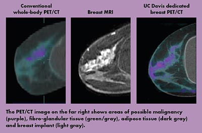 PET/CT images
