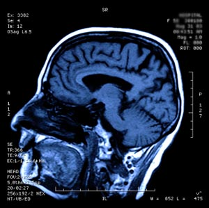 Photo of brain MRI © iStockphoto