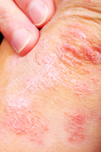 Psoriasis on elbow © iStockphoto9