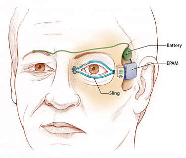 eye blink diagram © UC Regents