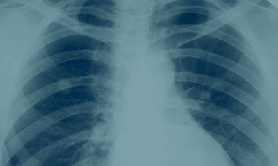 Lung x-ray © iStockphoto