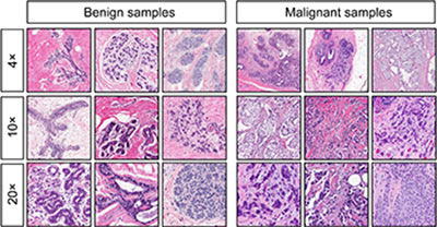 Image pigeons were very good at detecting slides of cancerous breast tissue at low, medium and high magnification.