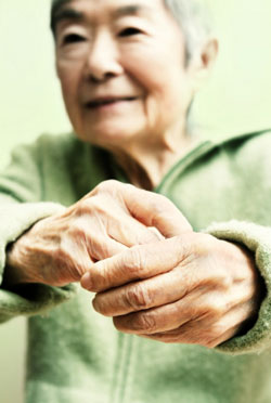 woman's arthritic hands