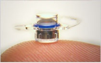 Implantable Miniature Telescope