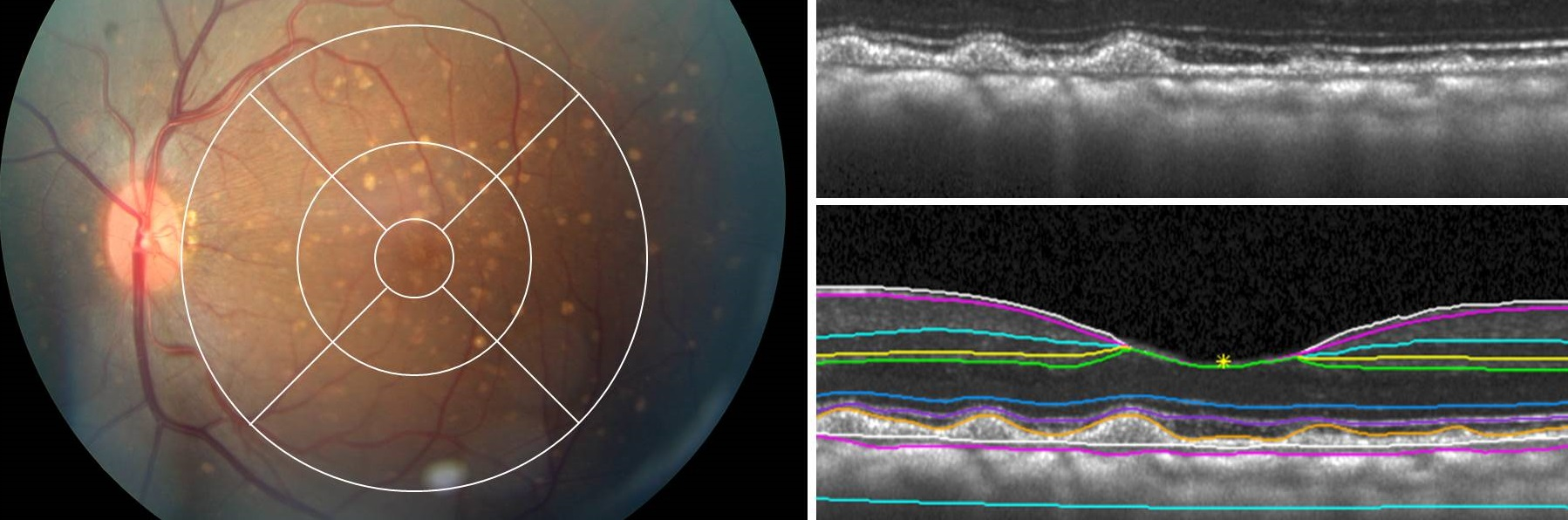 Imaging in Retinal Disease