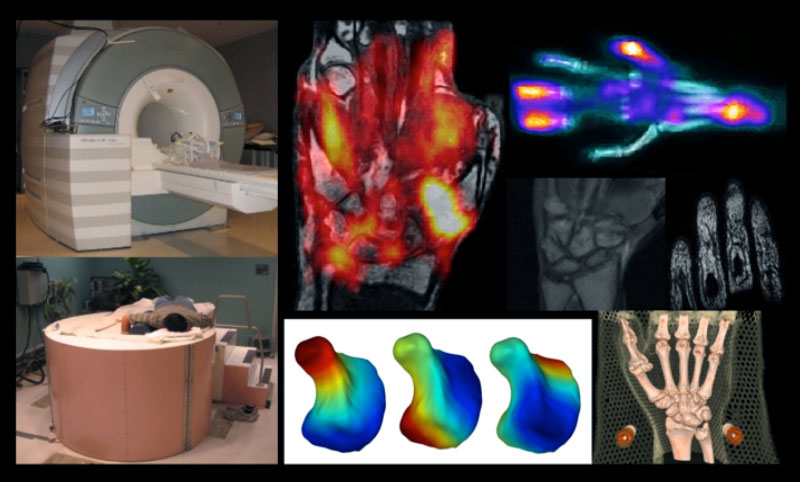Imaging research conducted as part of the Center for Musculoskeletal Health