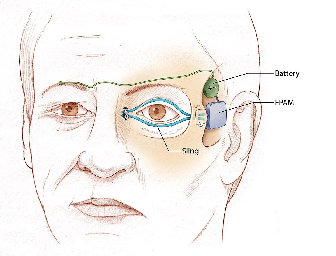 book Neurologie: …