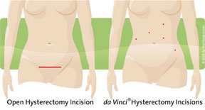 incision comparison for open surgery vs. robotic-assisted hysterectomy