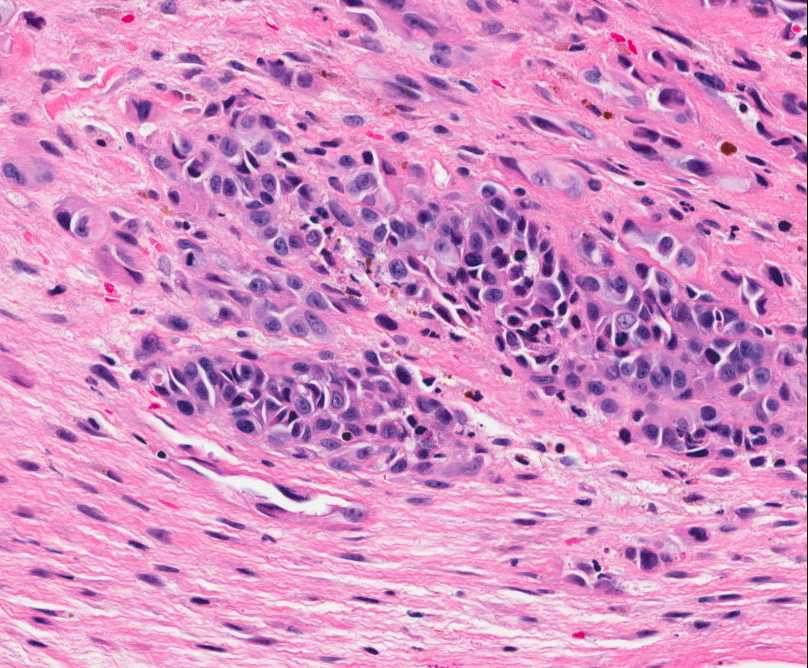 Figure 4: Nests of neoplastic cells with abundant eosinophilc cytoplasm and prominent nucleoli, surrounded by reactive fibrous tissue.