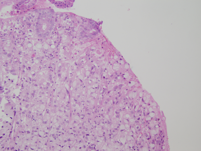 Figure 12: H&E section (20x) view of tranverse colon biopsy with infiltrating signet ring cells.