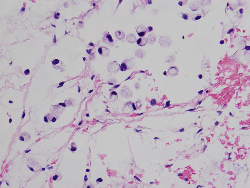 Figure 15: H&E section (50x) view of retroperitoneal lymph node biopsy with signet ring cells.