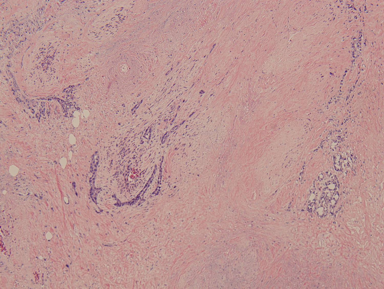 Figure 4: Low-power view of an invasive glandular component with a surrounding desmoplastic response