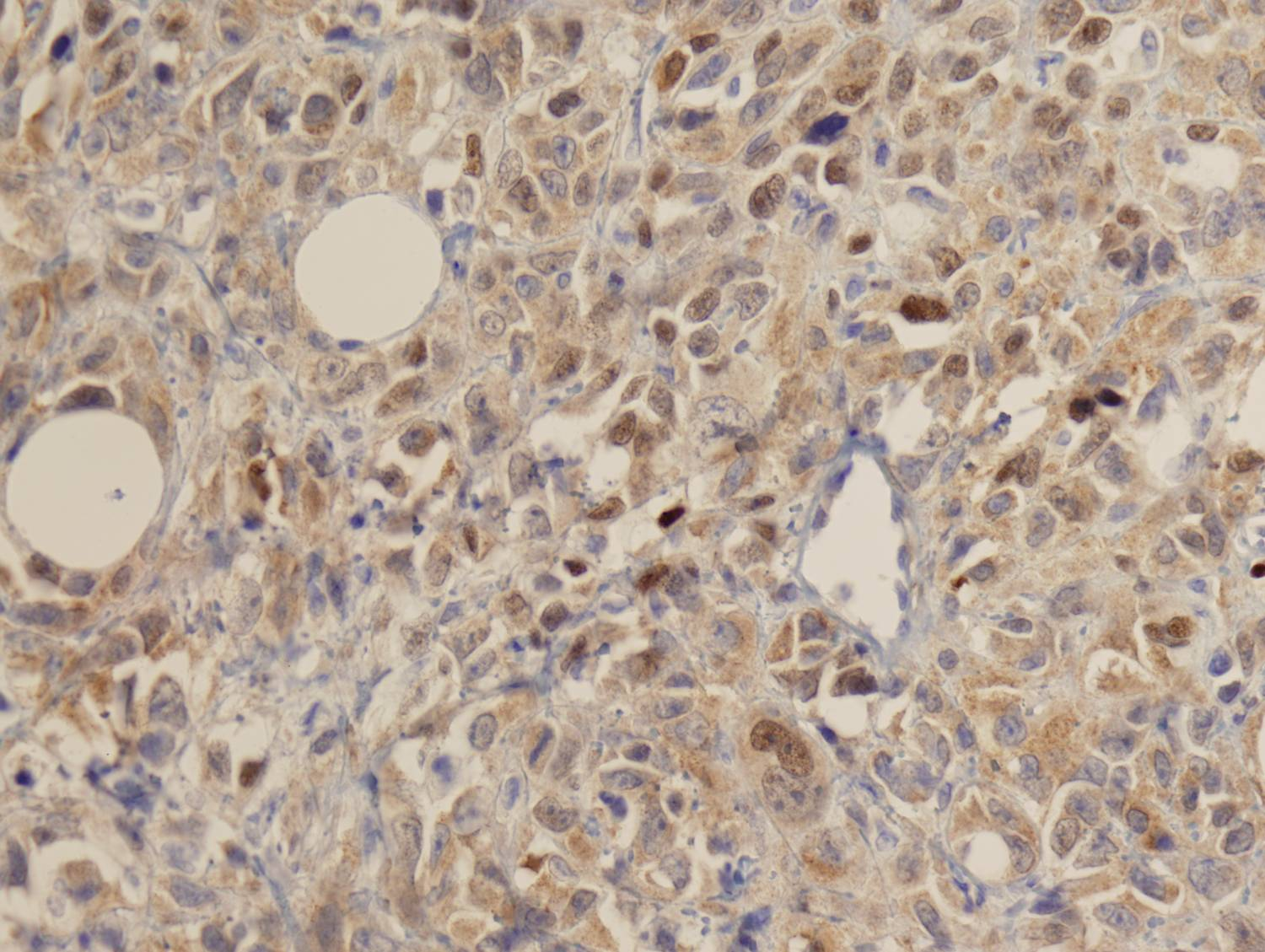 COTM Jan2010 Immunohistochemical Stains: p63