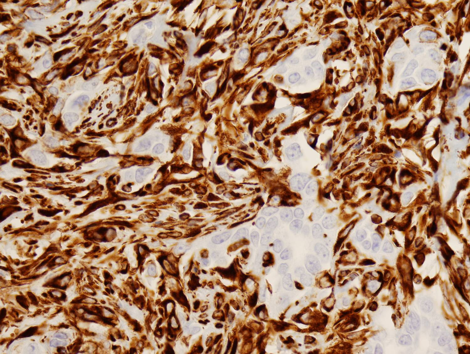 COTM Jan2010 Immunohistochemical Stains: Vimentin