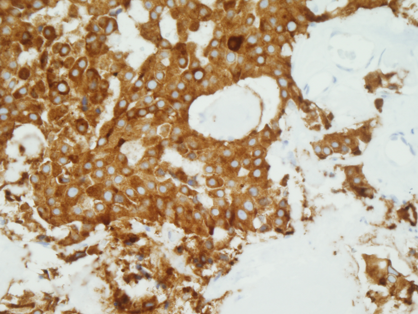 COTM August 2010 Immunohistochemical stains: Figure 2 of 2