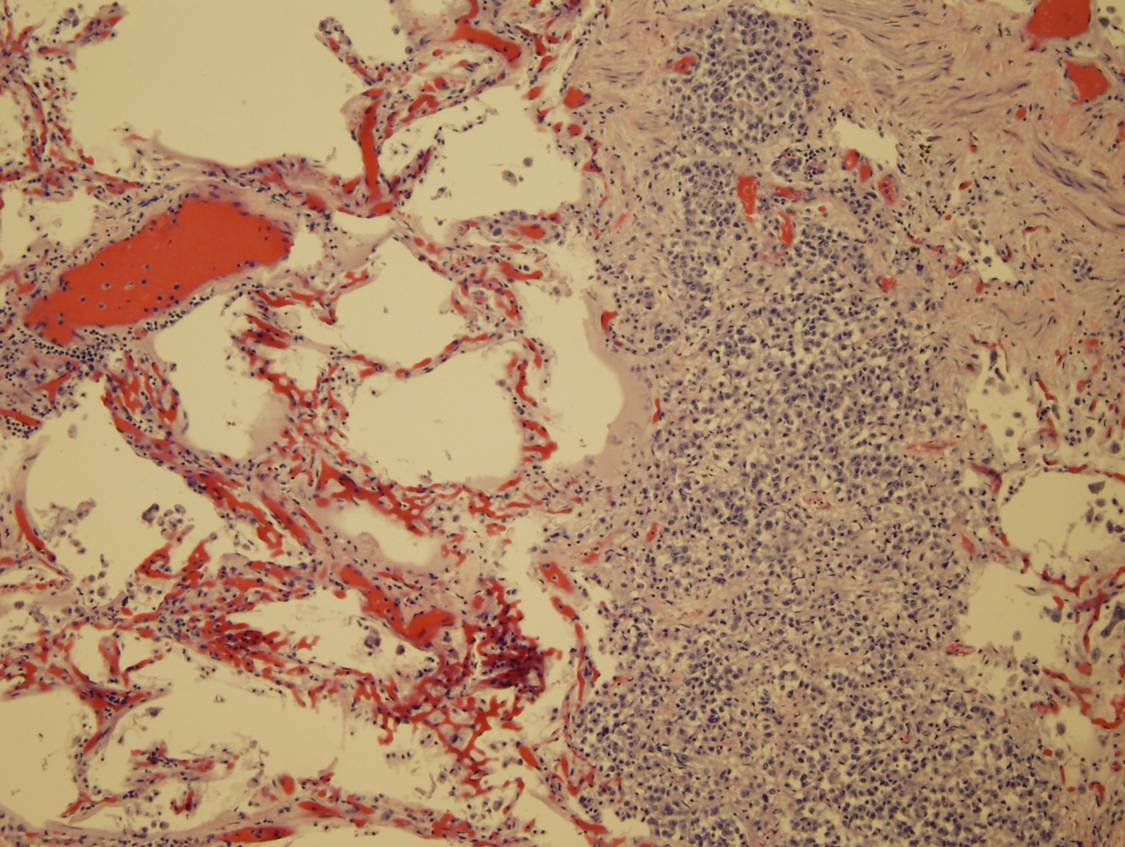 Image 4: Medium power view of metastatic disease within lung parenchyma (Click to enlarge)