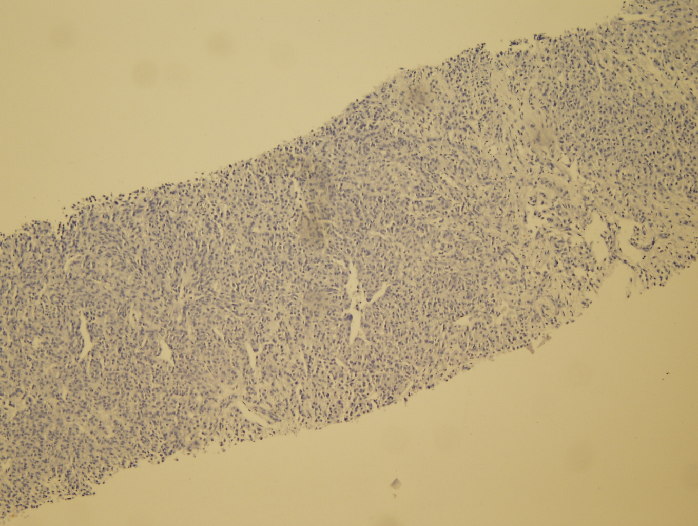 Microscopic image 5 - Liver core biopsy, S100 (Click to enlarge)