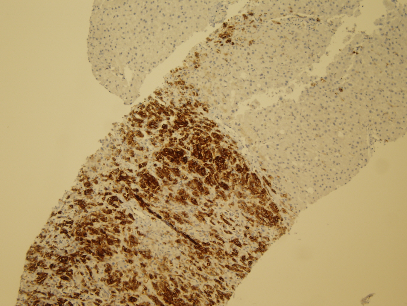 Microscopic image 4 - Liver core biopsy, CD117 (Click to enlarge)