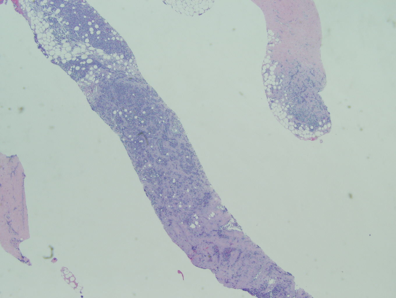 Microscopic image 1- Biopsy from breat mass 2x (Click to enlarge)