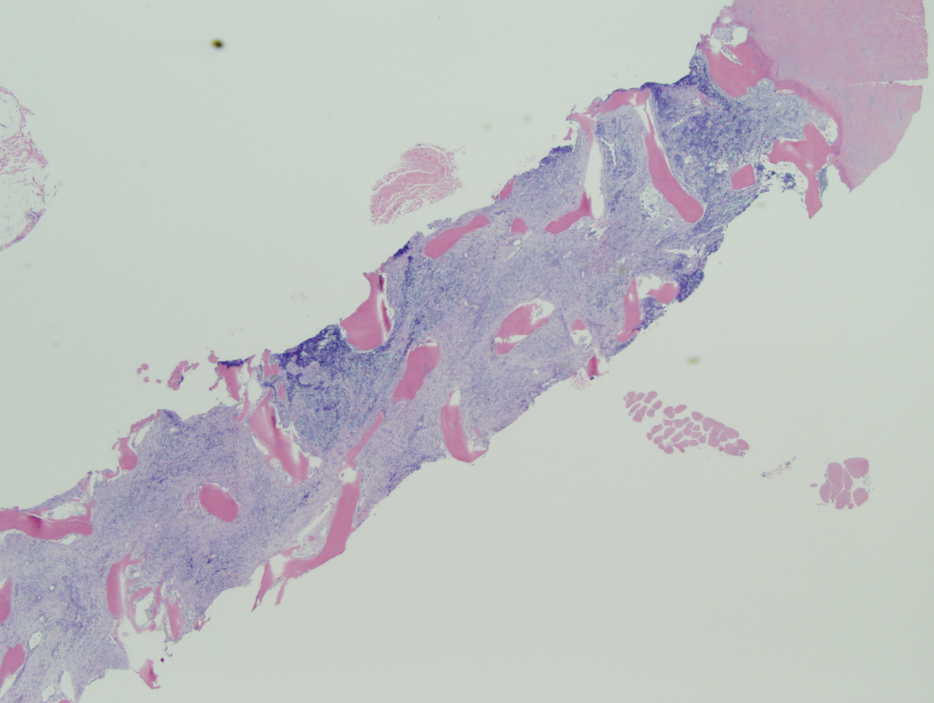 Microscopic image 3 - Biopsy from bone marrow, 2x (Click to enlarge)