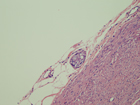 Microscopic image 9: Appendix (Click to enlarge)