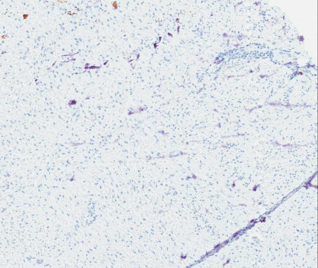 Case of the Month, Aug. 2012: Immunohistochemistry images - Figure 9