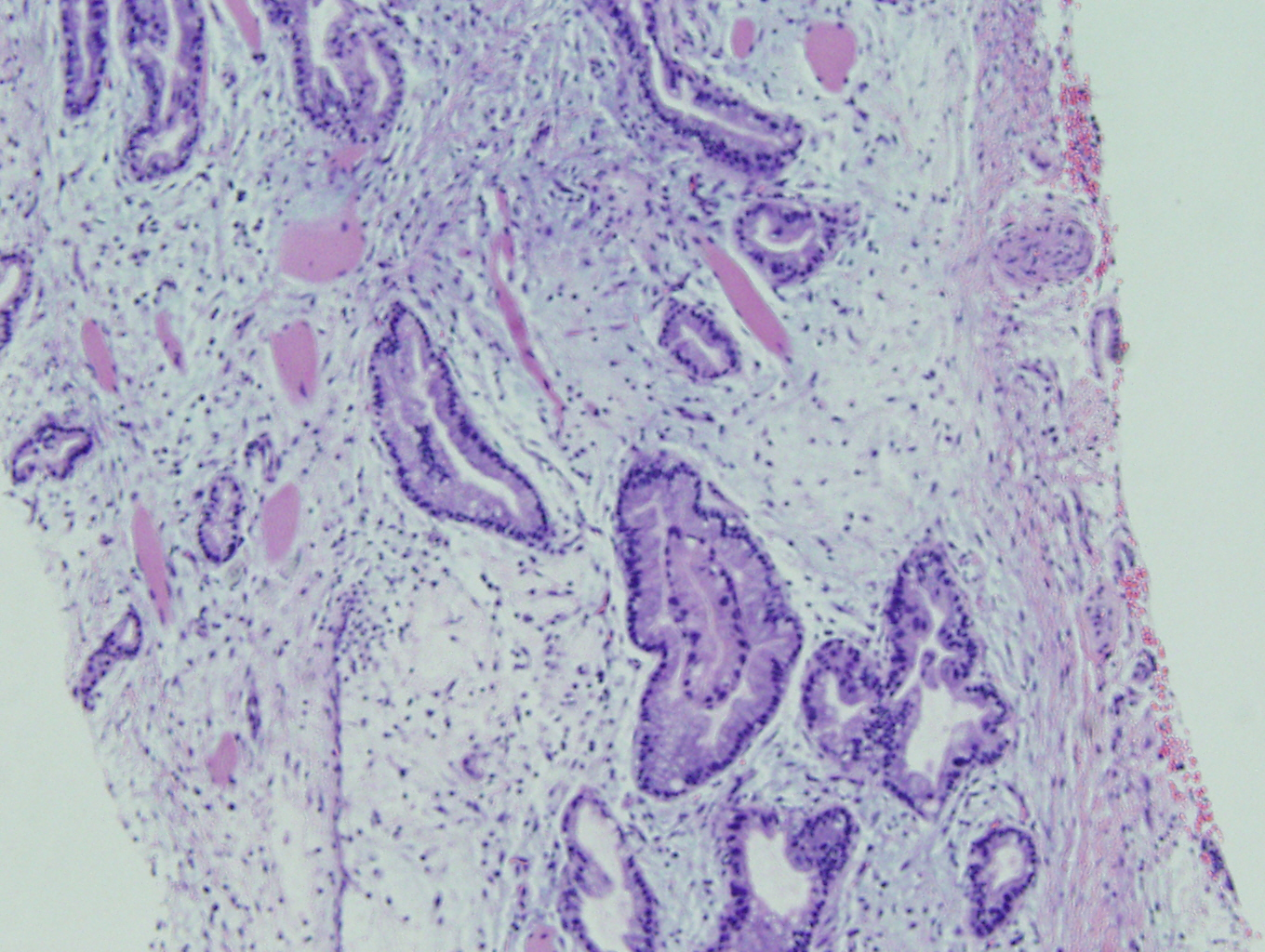 Case of the Month, Mar. 2013: Figure 4