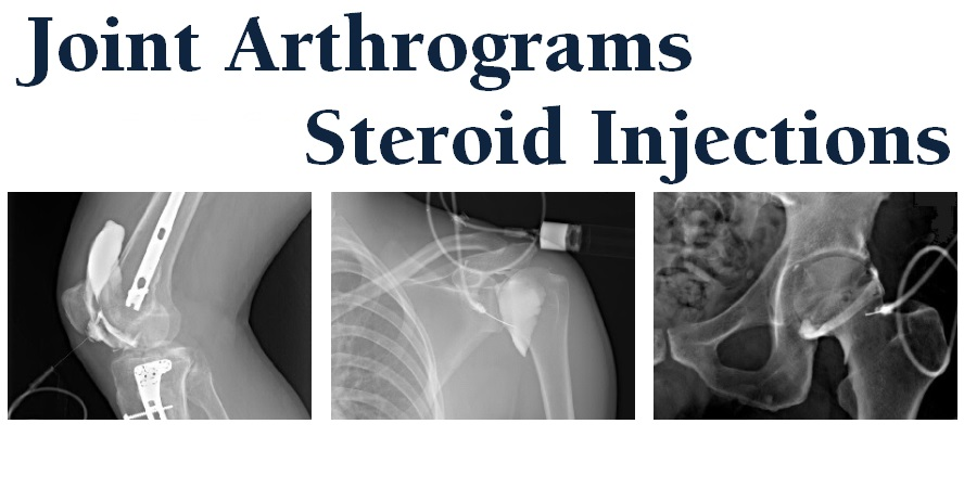 Joint arthrograms and Steroid injections