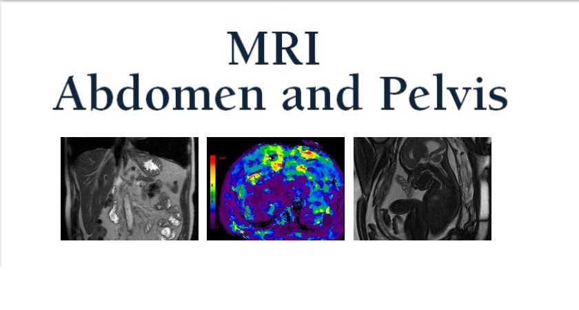 Preparing for Abdomen and Pelvis MRI | UC Davis Health