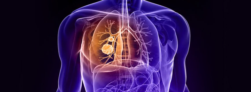 WATCH VIDEO - Lung Cancer: Symptoms, Causes and Treatment