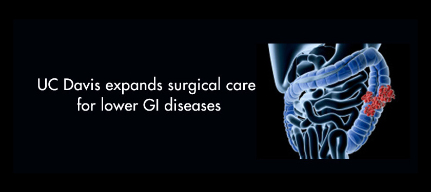 UC Davis expands surgical care for lower GI diseases
