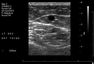 Vein Mapping: UC Davis Vascular Center on deformation mechanism map, stem map, eye map, iris map, vascular map, arteries map, taste bud map, muscle map, venous map, lung map, spine map, nerve map, growing map, artery map, spinal cord map, context map, noise map, node map, carotid map, brain map,