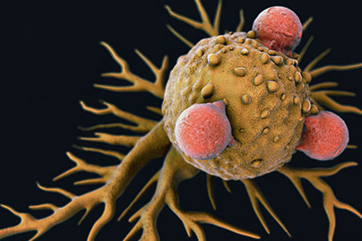 T lymphoma cell © iStock