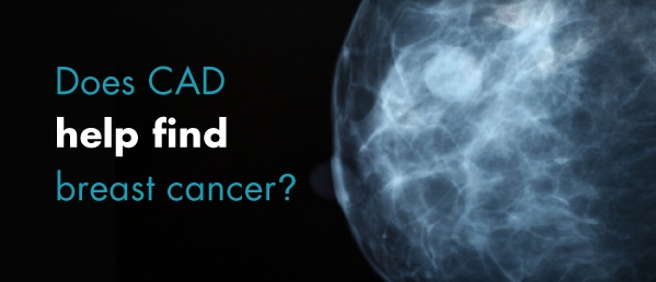 Does CAD help find breast cancer? © iStockphoto